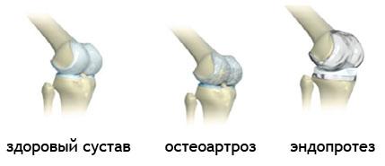 сменить коленный сустав